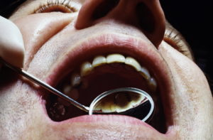 Dentist, patient, examination, oral reflector, close up model released, man, doctor, dentist's practise, precaution examination, control, bite, mouth, cogs, oral cavity, reflector, control, controlling examination, dentistry, detail very closely