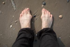Füße mit Hallux Valgus im Sand