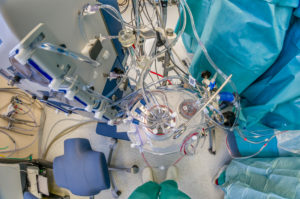 Heart Lung machine-Heart valve replacement surgery, operating room,