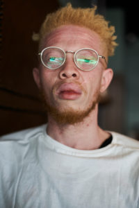 Portrait of an albino man with round glasses